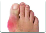 Gout Foot Pain - Critical Care Pharmacy
