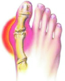 Gout Pain - Critical Care Pharmacy