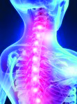Musculoskeletal Pain - Critical Care Pharmacy