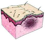 Scar Tissue Diagram - Critical Care Pharmacy